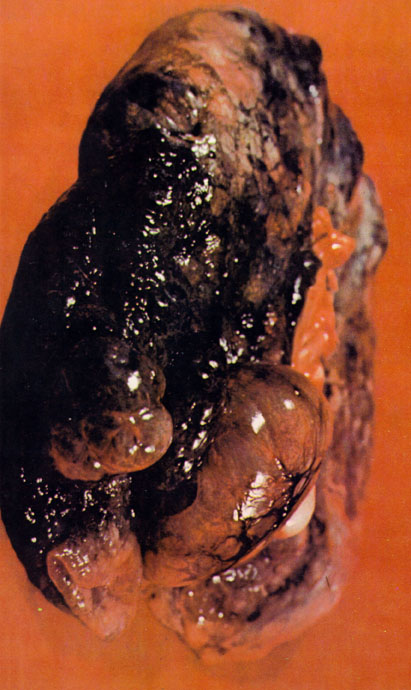 This is a smokers lung